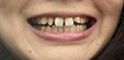 almican_akasaka_teeth2